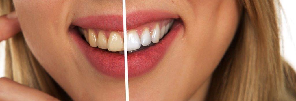 לפני ואחרי הטיפול